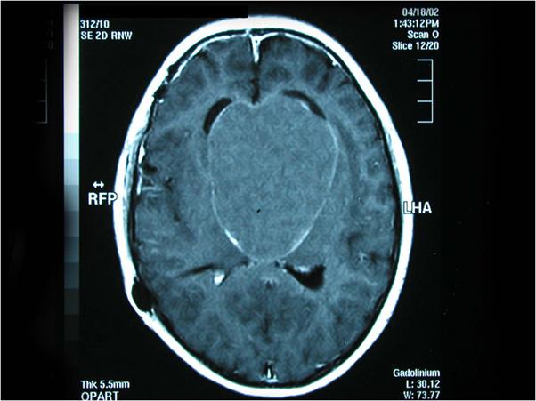 Craniopharyngiomas_01
