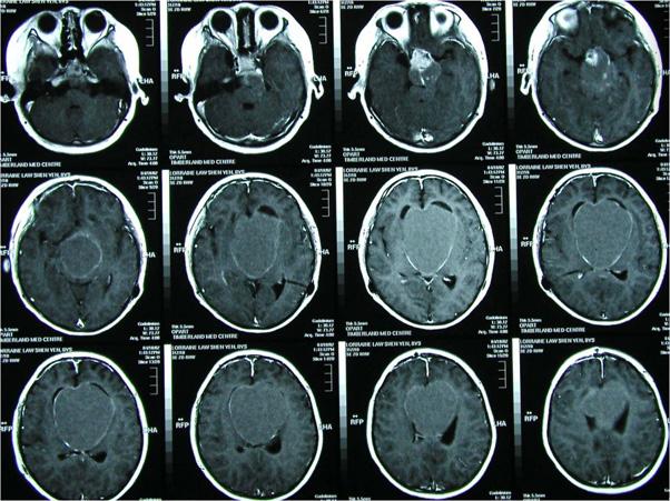 Craniopharyngiomas_02