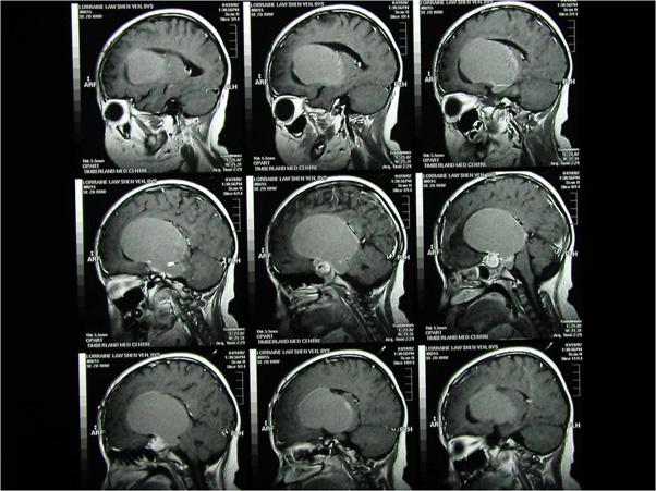 Craniopharyngiomas_03