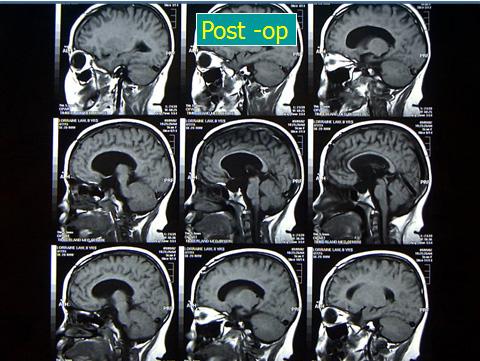 Craniopharyngiomas_05_02