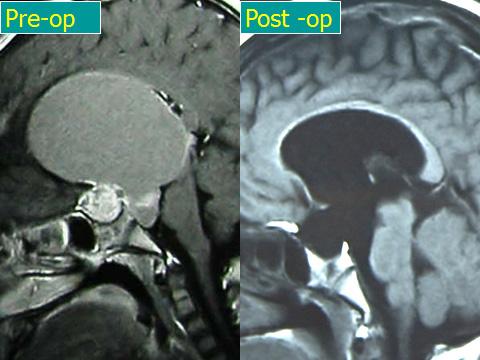 Craniopharyngiomas_06_01