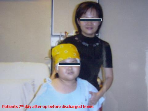 Craniopharyngiomas_06_02