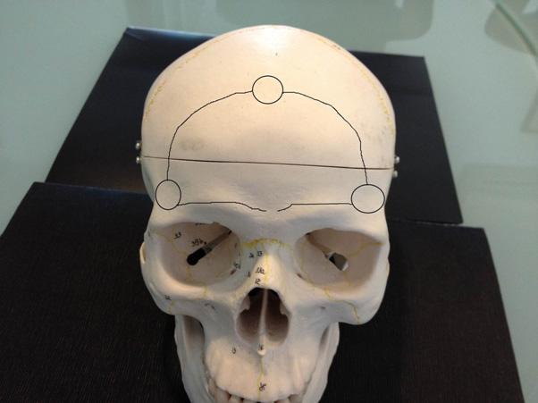 Craniopharyngiomas_11